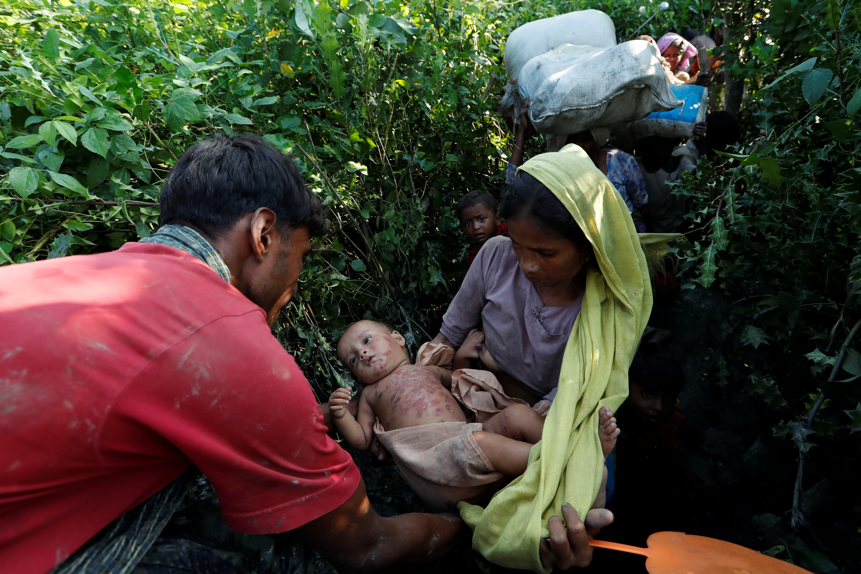 سيدة تحمل طفلها المصاب