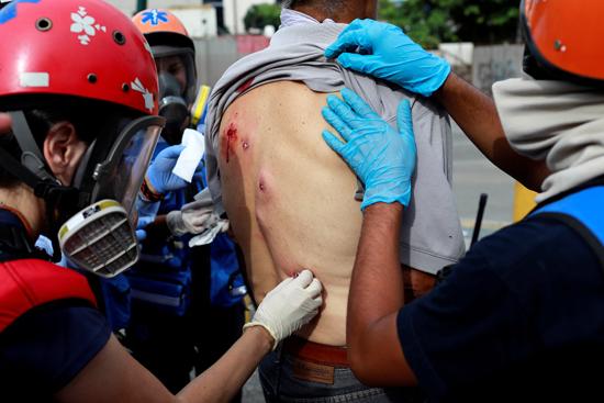اصابة أحد المتظاهرين برصاص مطاطى