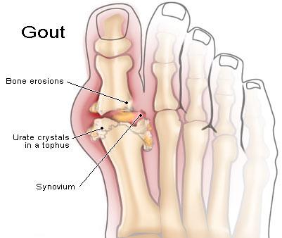 gout-8