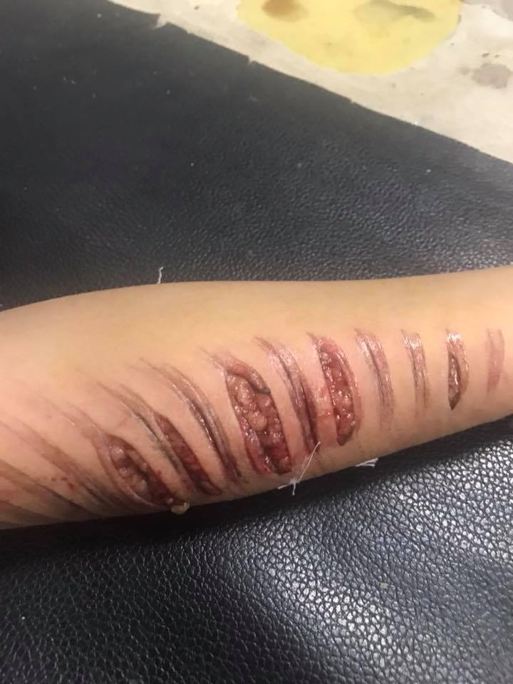 الطفل المصاب في حادث سلم أرض اللواء