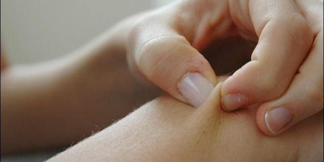 افرازات البصمه الجلديه