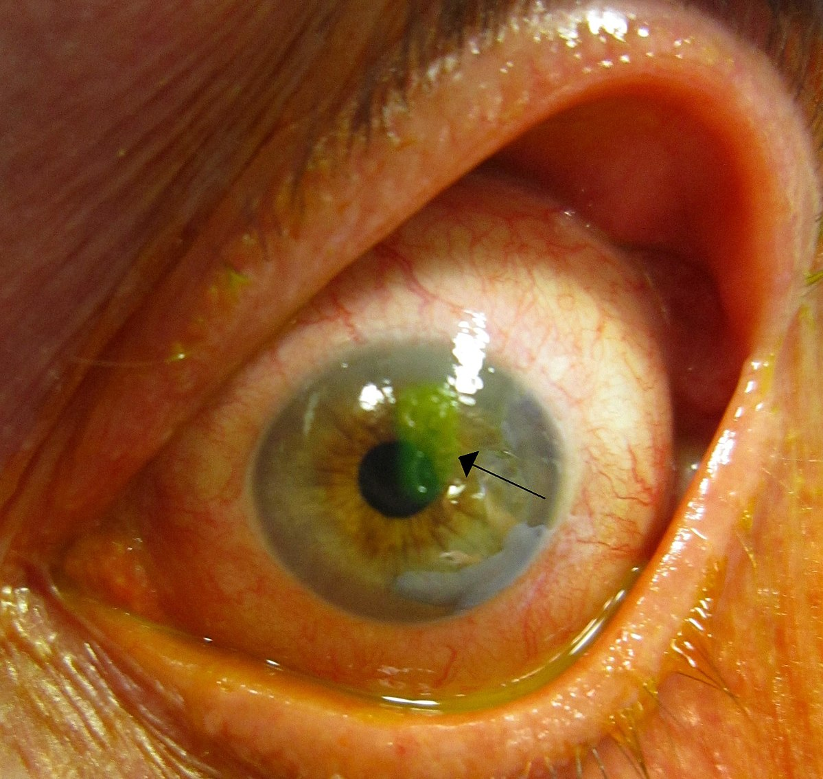 1200px-Human_cornea_with_abrasion_highlighted_by_fluorescein_staining