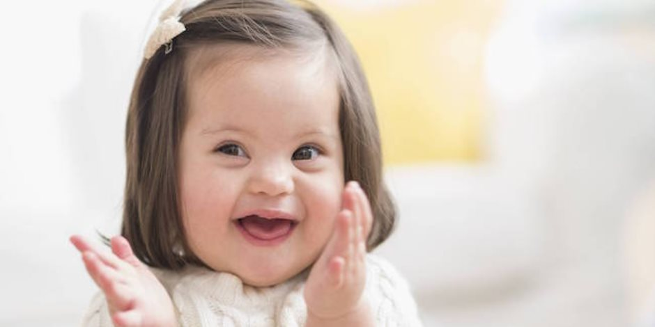 احذري إذا كان طفلك لديه «يدين عريضتين قصيرتين».. قد يكون مصاب بـ«متلازمة داون»