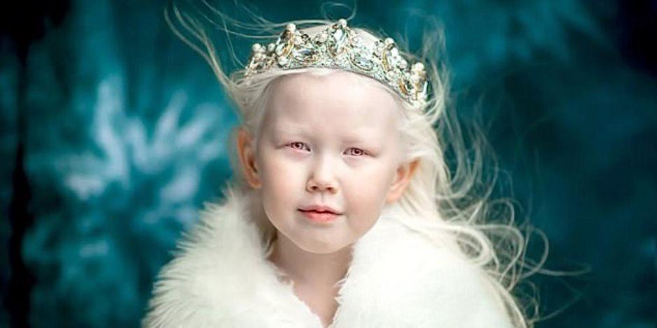 سحر طفلة الشمس يخطف شركات الإعلان والأزياء ويلقبونها بـ«سنواويت»