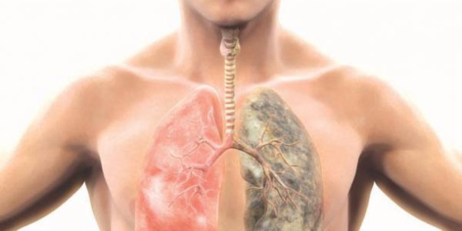 الأنف الإلكترونية لاكتشاف سرطان الرئة والرقبة والرأس والبروستاتا والشلل الرعاش