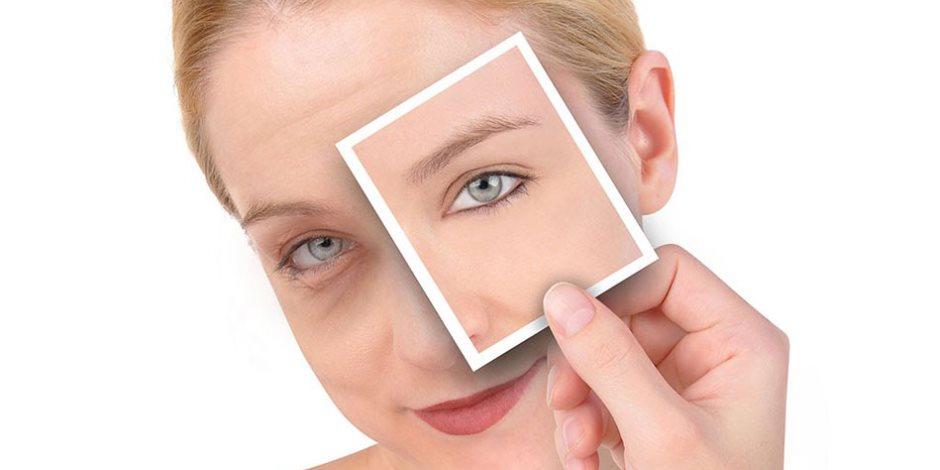 5 وصفات طبيعية للتخلص من الهالات السوداء حول العين والإنتفاخات