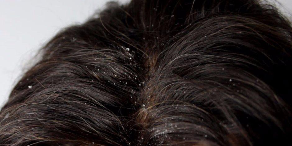 كيف تعالجى قشرة الشعر بـ«زيت اللوز وعصير الليمون»؟