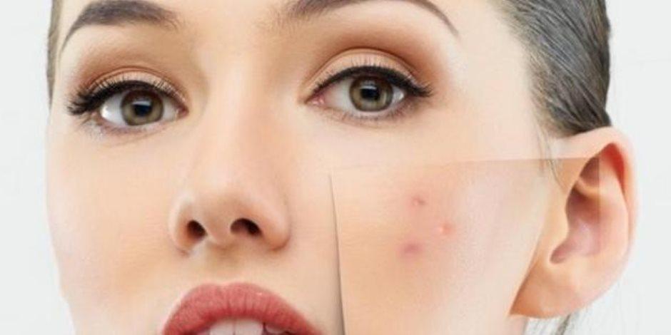 هل تعاني من انتشار البثور على وجهك؟.. احذر هذه العادة تزيد حبوب الشباب