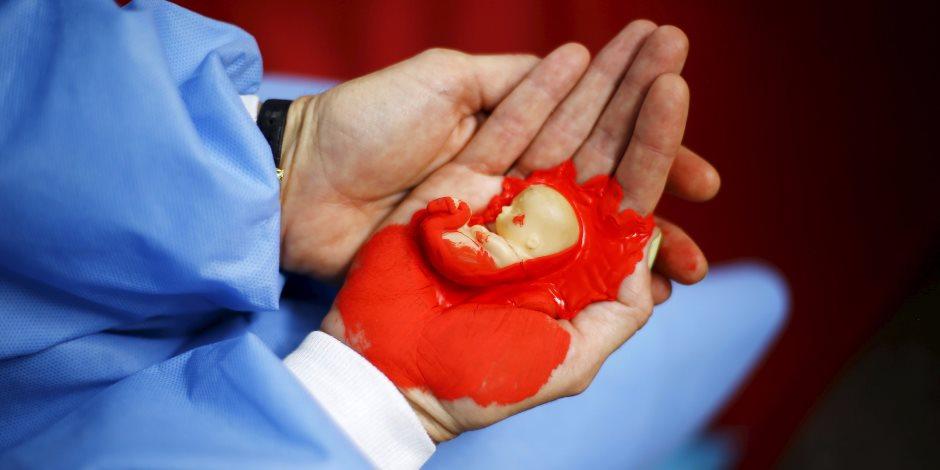 كبسولة قانونية.. جريمة إجهاض الحوامل فى 7 دول عربية