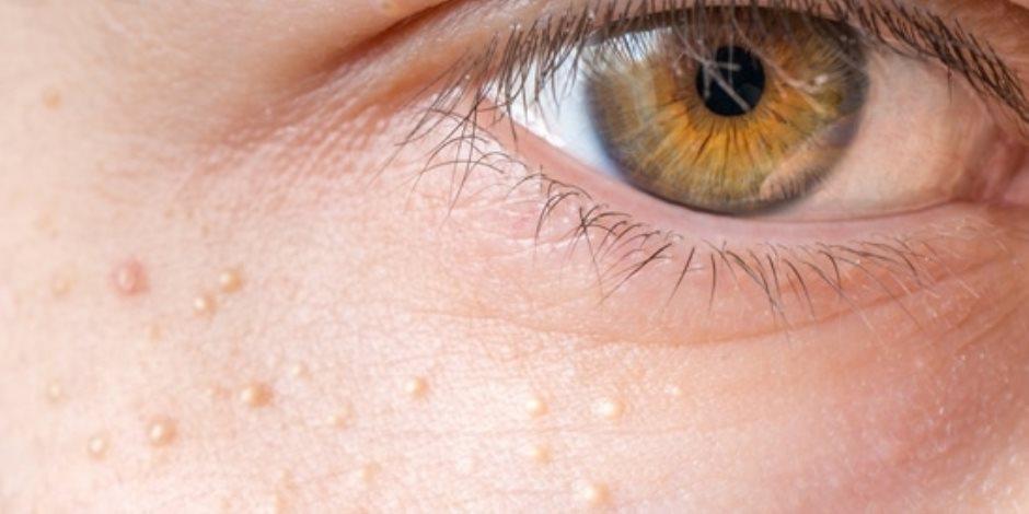 خمس علاجات منزلية لإخفاء الحبوب البيضاء في الصيف