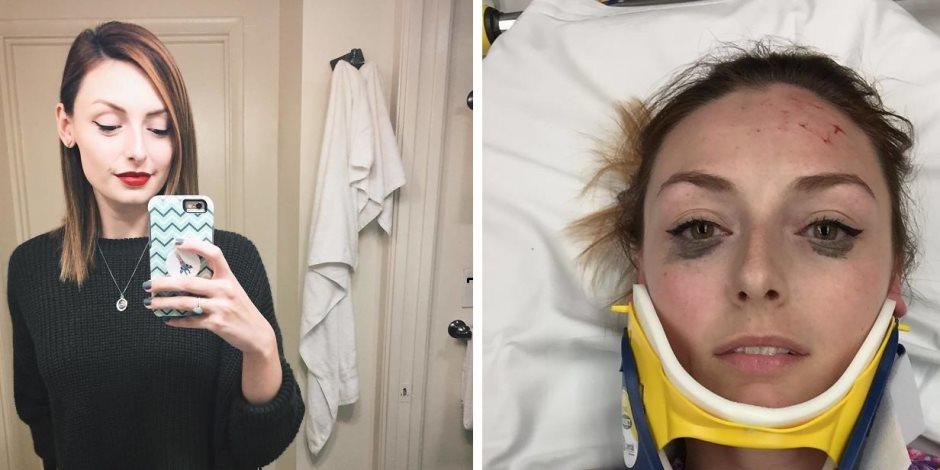 فتاة مهووسة بالجمال تلتقط سيلفي أثناء تعرضها لحادث للتأكد من ثبات خط الآى لينر