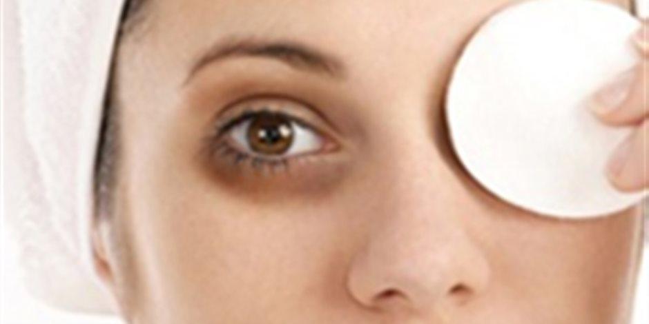 علماء: قلة النوم والاهتمام بالعمل يسبب الهالات السوداء حول للعين