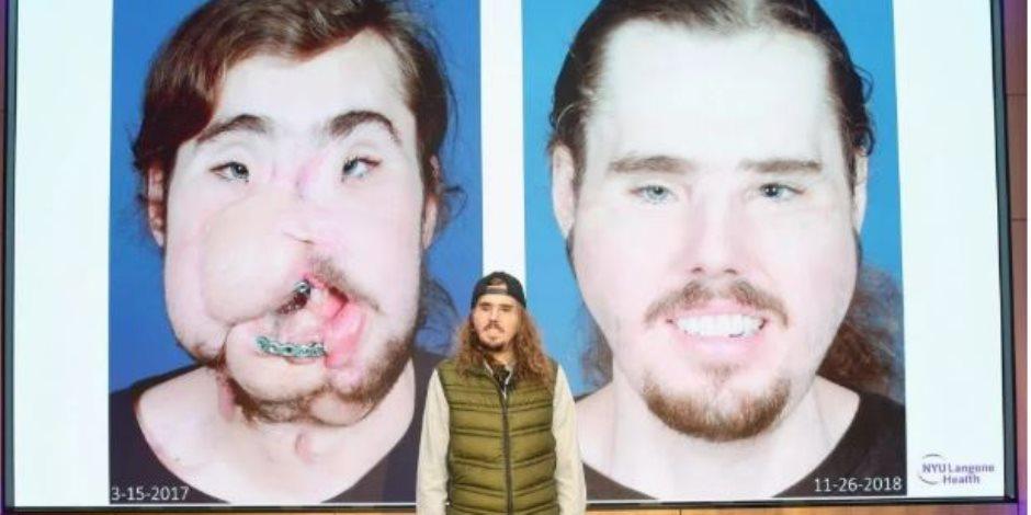 بعد 21 عاما.. نجاح أول عملية زراعة وجه في العالم.. اعرف التفاصيل (فيديو وصور)
