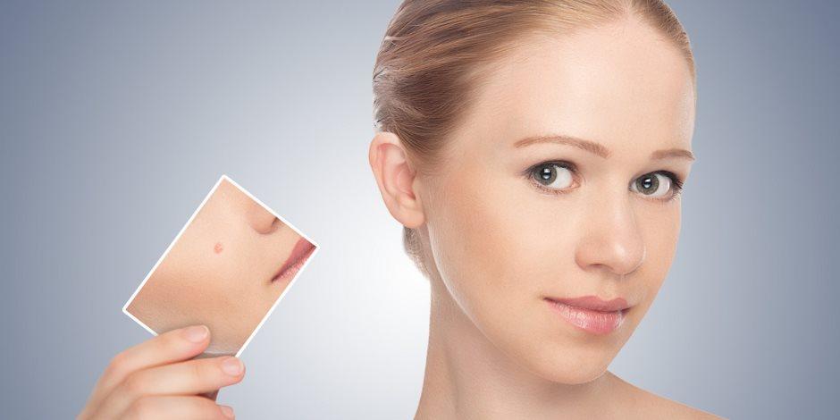 5 خطوات هتعرفك نوع بشرتك دون حيرة