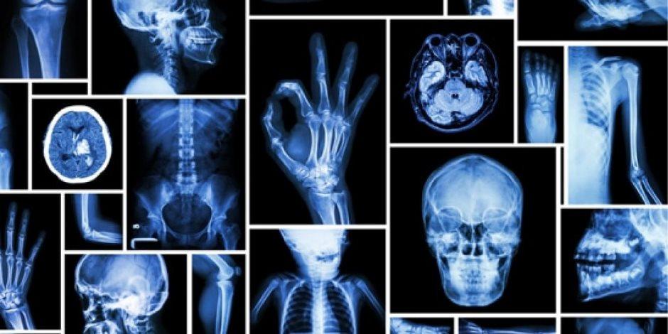 الأشعة السينية أو الإكس راي: تكشف الخلل ولا تؤذي