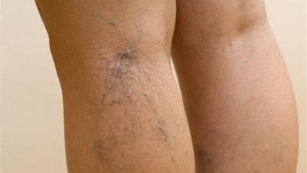 للسيدات.. تخلصى من دوالى الساقين برجيم فعال لمدة أسبوع
