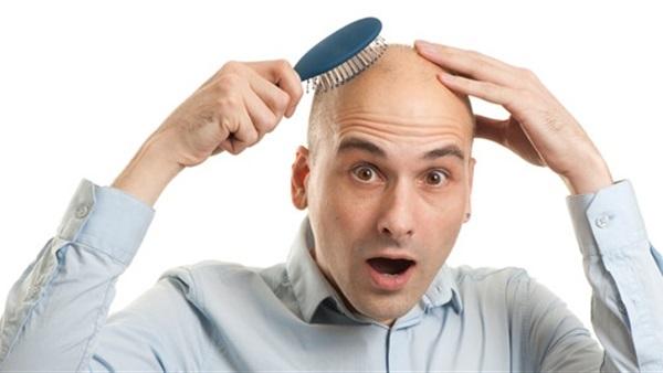 دراسة: الرجال المصابون بالصلع أكثر صدقا وذكاء