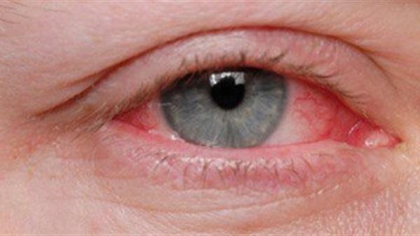 وصفة سحرية لتنظيف العين وإزالة الالتهابات