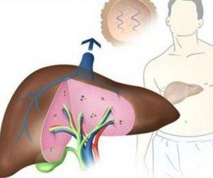نصائح تحميك من الكبد الوبائي.. تعرف عليها وعيش في سلام
