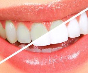 علشان ابتسامة هوليوود سمايل.. 5 أطعمة تعمل على تبييض الأسنان بشكل طبيعى