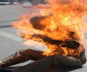 حالته مستقرة.. نيابة أكتوبر تتسلم التقرير الطبي الخاص بعامل أشعل النار في ملابسه