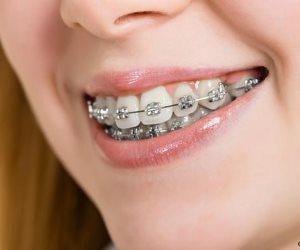 5 أطعمة من السهل تناولها أثناء تركيب المشابك لتقويم الأسنان