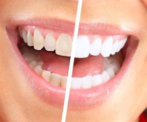 تجنبى هذه المشروبات والأطعمة لأسنان بيضاء.. أهمهم الكاتشب والوجبات الهندية