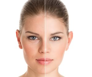 4 مواد تجميل احذري أن تضعيها على بشرتك.. مزيل العرق وصبغة الشعر منهم