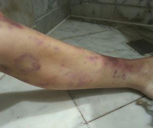 شبهة جنائية وراء مصرع سائحة بلجيكية في شرم الشيخ (صور)