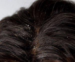 3 طرق لعلاج قشرة الشعر بالمنزل.. السر في الخل