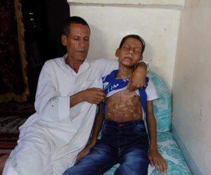 """""""محمد"""".. دخل المستشفى بارتفاع في الحرارة فخرج مصابا بجدري مائي (صور)"""
