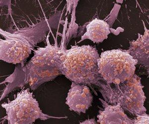 دراسة: تناول المزيد من الألياف يقلل احتمالات الوفاة بسرطان القولون