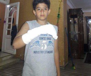 """معلم يكسر ذراع طالب بواسطة """"ماسورة مياه"""" في مدينة نصر (صور)"""