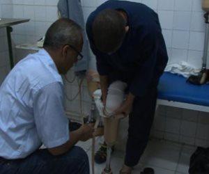 السجون توفر  أطراف صناعية لـ9 من نزلاء ليمان 440 الصحراوي (فيديو وصور)