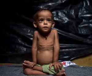 الأنيميا تهدد أطفال الروهينجا في مخيمات بنجلاديش (صور)
