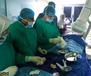 لأول مرة.. نجاح جراحة غلق ثقب بالقلب لطفلة بدون تدخل جراحي بدمياط