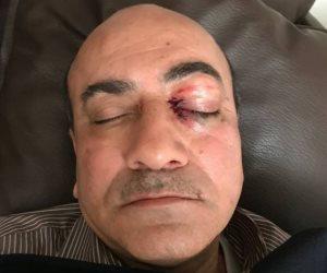 """هشام جنينة في التحقيقات: """"ضربوني وكأني حرامي"""""""