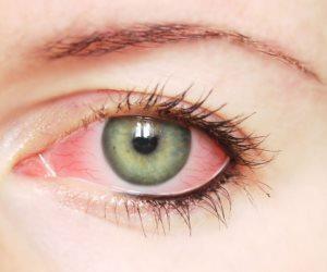 لو بتعاني من احمرار العينين إليك أهم الأسباب وطرق العلاج