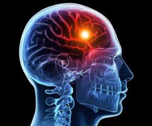 علامات السكتة الدماغية.. ألم في الذراع وصعوبة الكلام أهمها