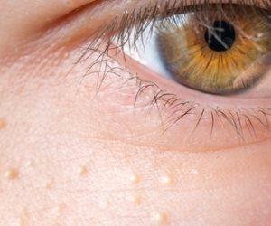 هل تعاني من البثور الموجودة تحت الجلد وفشلت في علاجها؟.. إليك الحل