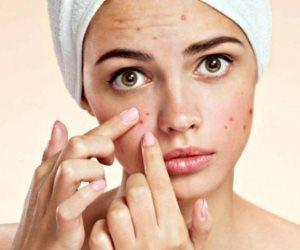 أسهل الطرق لعلاج البثور...غسل الوجه مرتين والتقشير
