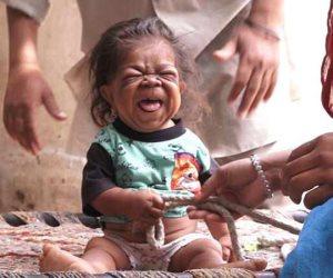 رجل محبوس في جسد طفل .. هندي 23 عاما ويزن 5 كيلوجرامات بسبب حالة وراثية