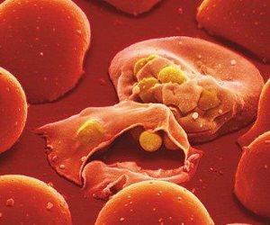 دراسة تحذر .. تغير رائحة الجسم مؤشر للإصابة بالملاريا