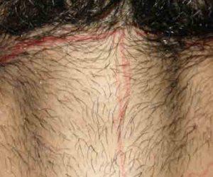 علوم مسرح الجريمة..كيف تدل «بصمة الشعر» على سن وجنس الجانى وصلته بالمجنى عليه ؟
