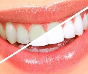المشروبات الغازية والتخدين.. أسباب ودرجات الإصابة باصفرار الأسنان (صور)