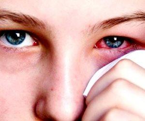 على رأسها التهاب القرنية.. كل ما تريد معرفته عن أضرار جفاف العين