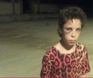 نور ليست الأولى.. «علبة حلاوة» تفتح ملف تعذيب الأطفال في بيوت الأثرياء