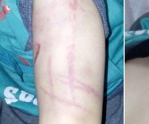 الجريمة في أبشع صورها.. زوج أم يعذب طفليها ويقطع العضو الذكري لأحدهما بالإسكندرية (صور)