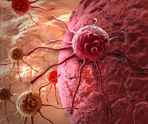 علاج سرطان الدم بالكيماوى والإشعاعى والبيولوجى