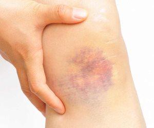 العلاج سهل وبسيط.. تعرف على أسباب كدمات العظام وطرق علاجها